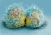 A  HeLa cancer cell dividing