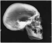Skull (X-ray)