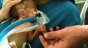 Premature and Under Weight Birth