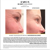 Give yourself an eye lift without needles!