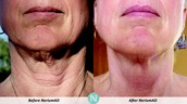 You can't Botox your neck