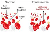 What are the chance of getting thalassaemia? how many people are affected?
