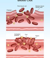 How platelets work with blood clots.