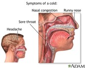 The way to know if you have the cold