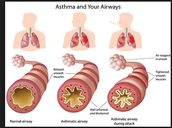 Airways of normal people compared to asthmatic people