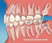 Dentist in ann arbor