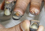 what krokodil is all about