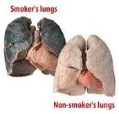 smokers lungs compared to non smokers lungs