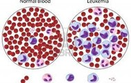 Leukemia Blood Cells