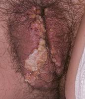 Female Genital Warts*