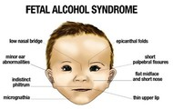 Alcohol causes Fetal Alcohol Syndrome