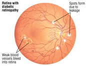 Eye damage that occurs through hypertensive retinopathy