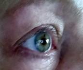 Eye for Details