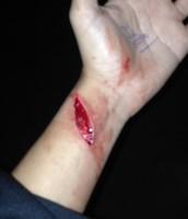 i own a scar