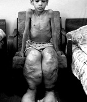 Child that suffered birth defects from Chernobyl radiation