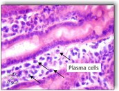 Plasma cells under a microscope