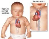 Dextrocordia