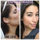 Stephanie Paradiso's Story:
