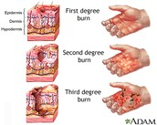 What is a third degree burn?