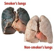 Smokers lungs.