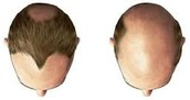 Steroids can cause balding