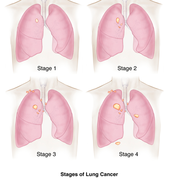 Facts About Lung Cancer