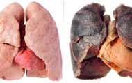 Emphysema ( Healthy and Bad)