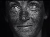 כך נראה העור דרך קרינת השמש