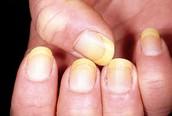 Smoker's Nails
