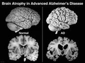 Normal vs. Advanced Alzheimer's