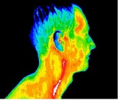 Carotid Artery Inflammation