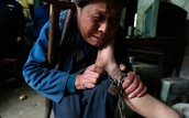 The Same Type of Disability Abuse Occurs in China as well