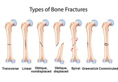 The 2 main types of fractures