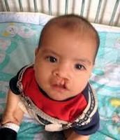 Bebé con labio hendido
