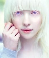 Albino Human