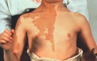 Skin Pigmantation