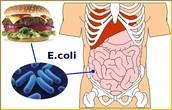 E. coli in the intestines