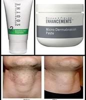 Skin Irritated From Shaving?