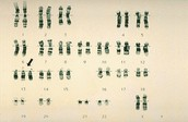 What is Trisomy 13
