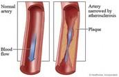 Pathogenesis of PVD