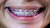 Subject: My Life With Braces