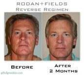 RODAN + Fields: It's not just for women