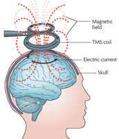 Transcranial Magnetic simulation