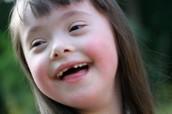 דוגמה על ילד עם תסמונת דאון אמו מספרת