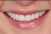 EL Paso Dentist