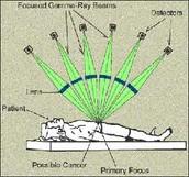 Gamma Radiation Treatment