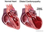 Dilated Cardiomyopathy: