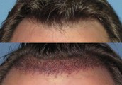 Hair restoration products in Pakistan