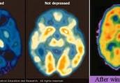 Depressed Brain vs. Healthy Brain vs. Winning the Lottery