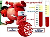 Polycthemia